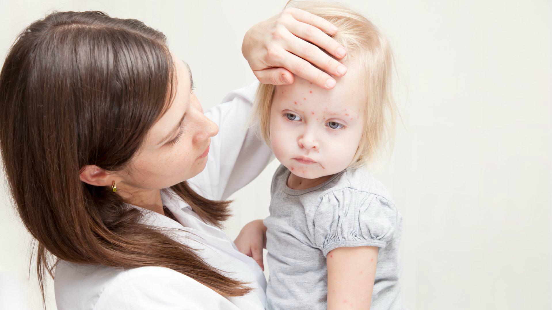 doenças comuns na infância